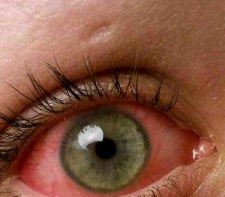 بعد از کار طولانی با گوشی چشمهایتان رابرای چند دقیقه بسته تا لایه اشک دوباره بازسازی و پرشود. فقدان اشک باعث قرمزی چشم شده و اگر این تمرین را انجام ندهید، دچار دوربینی می شوید.